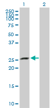 Western blot - XRCC6BP1 antibody (ab103823)