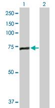 Western blot - EFHC1 antibody (ab103824)