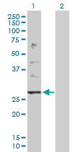 Western blot - PTPLB antibody (ab103825)