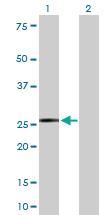 Western blot - Kappa light chain antibody (ab103827)