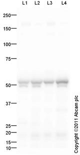 Western blot - Anti-CaMKII antibody (ab103840)