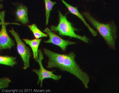 Immunocytochemistry/ Immunofluorescence - Anti-FSH Receptor antibody (ab103874)
