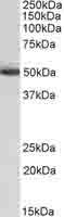 Western blot - Anti-ALDH2 antibody (ab103892)