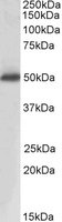Western blot - Prostatic Acid Phosphatase antibody (ab103893)