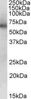 Western blot - ALDH1B1 antibody (ab103896)