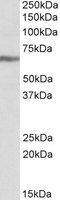 Western blot - IGF2BP1 antibody (ab103918)