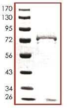 SDS-PAGE - Casein Kinase 1 delta protein (ab103955)