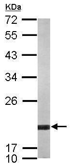 Western blot - ARF5 antibody (ab103974)