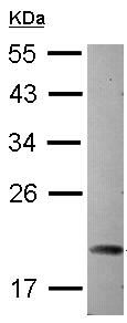 Western blot - ARL5A antibody (ab104008)