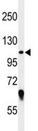 Western blot - GRP94 antibody (ab104039)