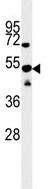 Western blot - SCRN1 antibody (ab104055)