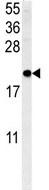 Western blot - SFT2C antibody (ab104057)