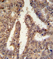 Immunohistochemistry (Formalin/PFA-fixed paraffin-embedded sections) - TIGD6  antibody (ab104066)