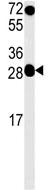 Western blot - HoxC6 antibody (ab104099)
