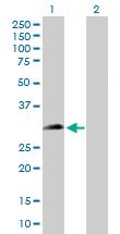 Western blot - CHMP1a antibody (ab104100)