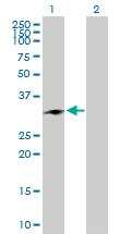 Western blot - CHMP1a antibody (ab104103)