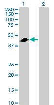 Western blot - GART antibody (ab104152)