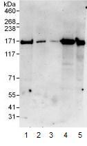 Western blot - Phospholipase C gamma 1 antibody (ab104254)