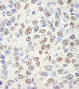 Immunohistochemistry (Formalin/PFA-fixed paraffin-embedded sections) - SAM68 antibody (ab104259)