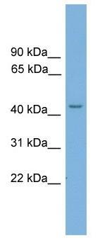 Western blot - TSPYL6 antibody (ab104283)