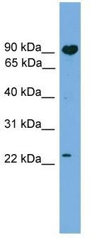 Western blot - TCTEX1D4 antibody (ab104294)