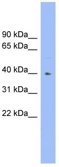 Western blot - Blood group H inhibitor antibody (ab104311)