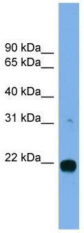 Western blot - MITD1 antibody (ab104313)