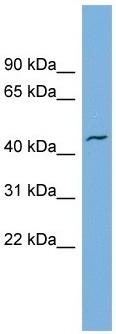 Western blot - VAT1 antibody - N-terminal (ab104318)