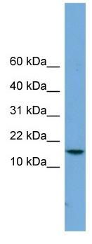 Western blot - PAGE4 antibody (ab104322)