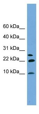 Western blot - Neuronatin antibody (ab104324)