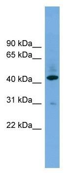 Western blot - B4GALT2 antibody (ab104335)