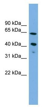 Western blot - ATP8B2 antibody (ab104336)