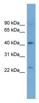 Western blot - ATP8B2 antibody (ab104337)
