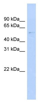 Western blot - GAS8 antibody (ab104340)
