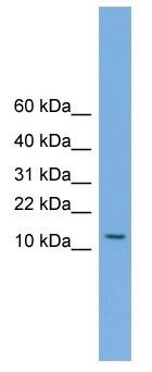 Western blot - MAGEA5 antibody (ab104341)