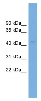 Western blot - Cyt 19 antibody (ab104342)