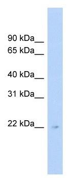 Western blot - C16orf73 antibody (ab104346)