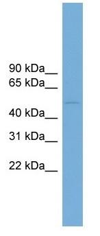Western blot - DCDC2 antibody (ab104348)