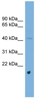 Western blot - STARS antibody (ab104349)