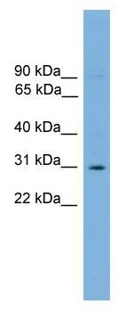 Western blot - ELF5 antibody (ab104410)