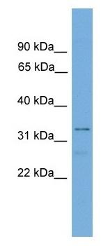 Western blot - TFIIS antibody (ab104419)