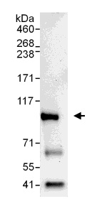 Immunoprecipitation - Dishevelled 2 antibody (ab104438)