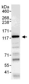 Immunoprecipitation - WWP1 antibody (ab104440)