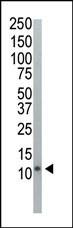 Western blot - Anti-UBA52 antibody (ab104455)