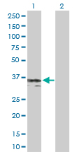 Western blot - gamma Sarcoglycan antibody (ab104478)