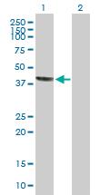 Western blot - Syntaxin 18 antibody (ab104485)
