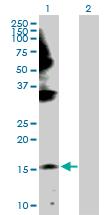 Western blot - Gemin 6 antibody (ab104488)