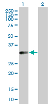 Western blot - Repulsive Guidance Molecule C antibody (ab104492)