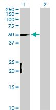 Western blot - MEF2D antibody (ab104515)