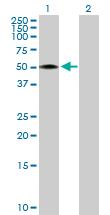 Western blot - RCN2 antibody (ab104516)